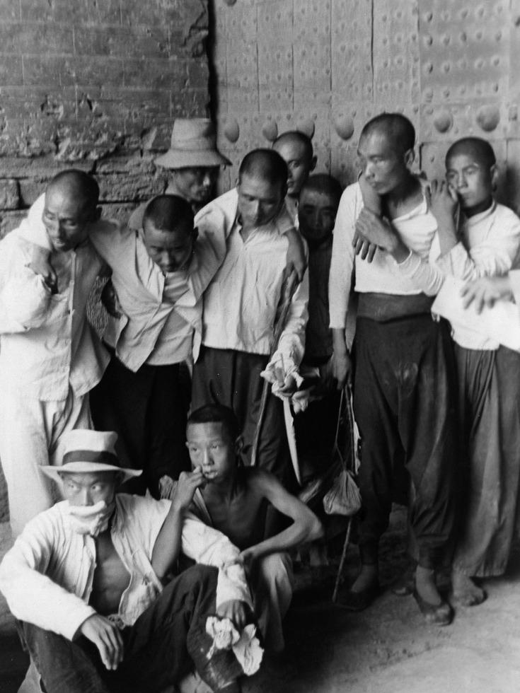 受伤的中国平民。(图源:VCG)